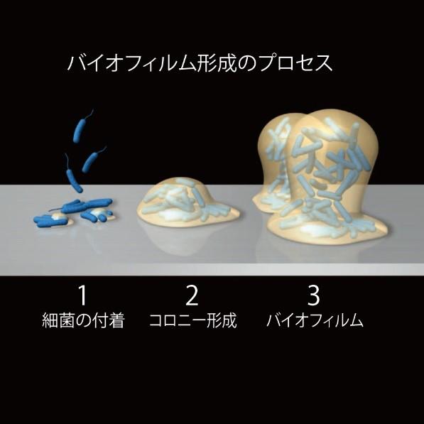 人工関節 図2