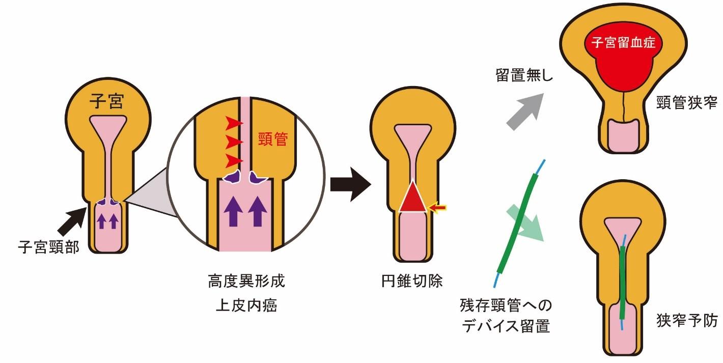 子宮 頚部 高度 異 形成 手術 後